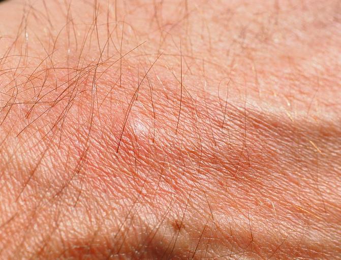 Mückenstich auf der Hand.