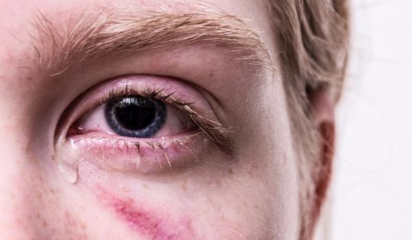 Mehrere Menschen haben in Bayreuth auf einen 16-Jährigen eingeschlagen. Symbolbild: Pixabay