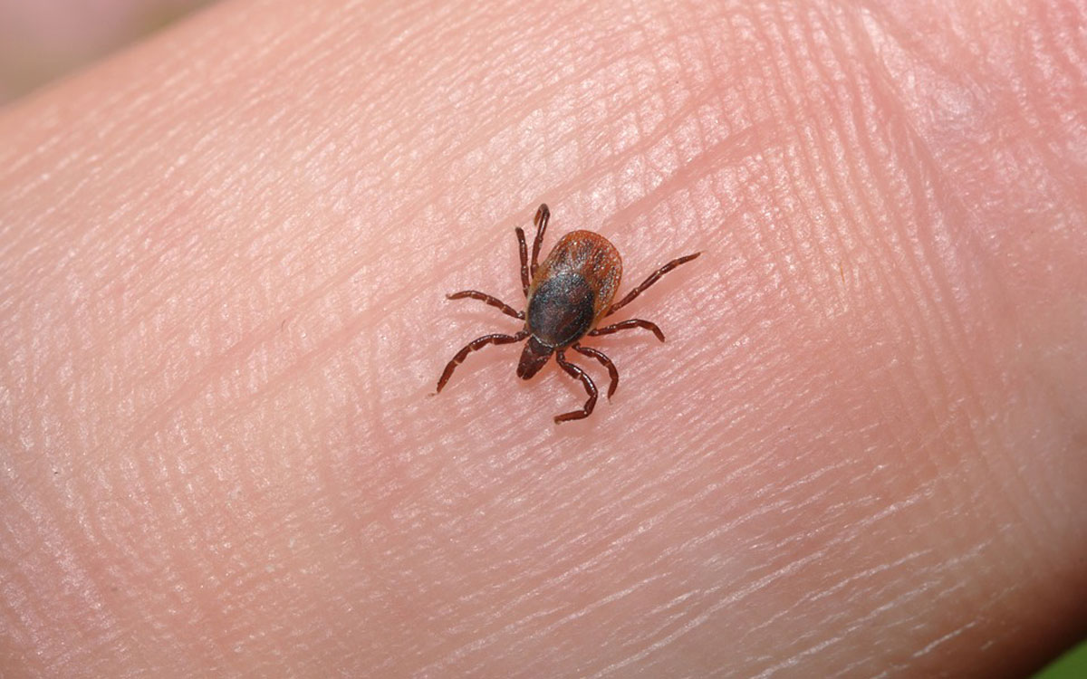 Parasiten wie Läuse kommen auch beim Menschen vor. Foto: pixabay.com @ gkgegk (CC0 Creative Commons)